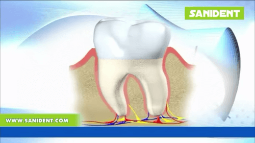 Video - Periodontal disease