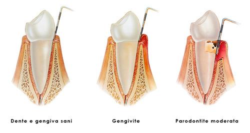 Gengivite vs Parodontite