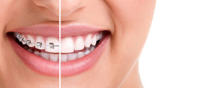 Crooked teeth remedies: fixed, mobile or invisible braces
