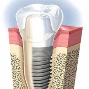 Implantologia a Milano