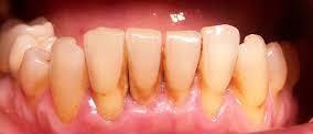 parodontite, placca e tartaro