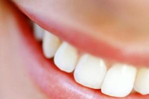 salute dentale: curare la parodontite