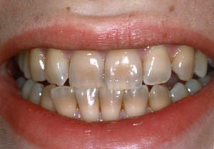 salute dentale: discromie dentali