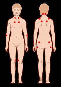fibromialgie