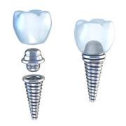 parti di un impianto dentale