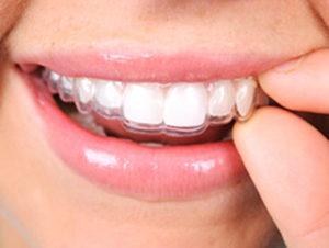 ortodontia milano