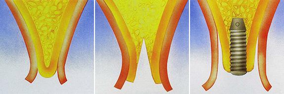 split-crest