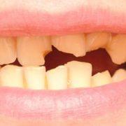 frattura del dente