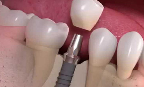 implantologia in 24 ore