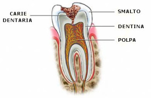carie odontoiatria conservativa
