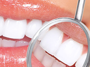 odontoiatria estetica celiachia