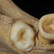 studio dei denti