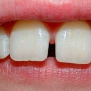 diastema apparecchio ortodontico