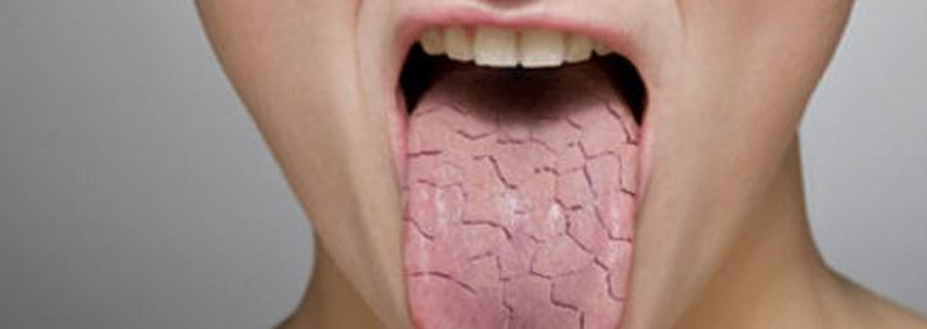 bocca secca