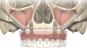 implantologia zigomatica milano