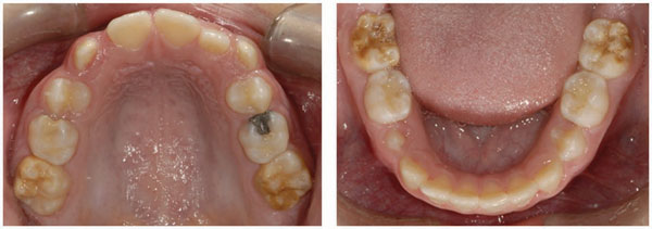 Molar incisor hypomineralisation (MIH)