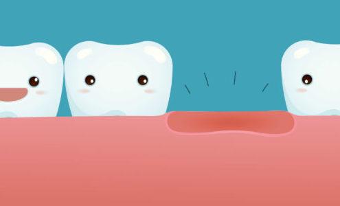 perdita di un dente dentista Milano