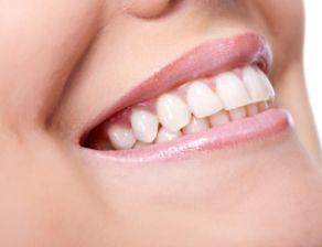 perdita del dente