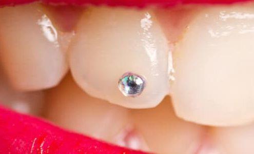 brillantino sul dente