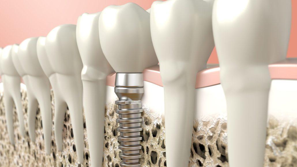 eccellenza implantologia Milano