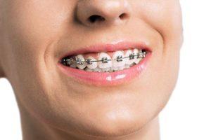 cure ortodontiche dentista milano
