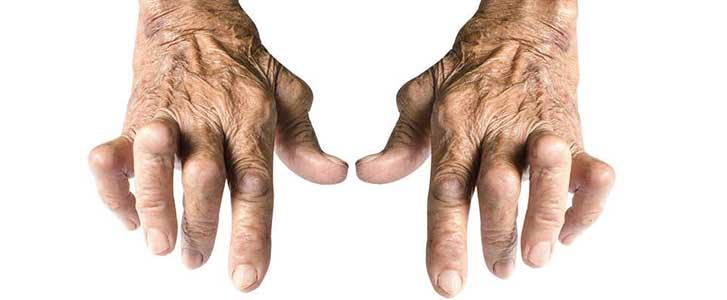 artrite reumatoide parodontite