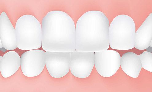morso inverso dentista milano