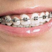 braces for teeth damage