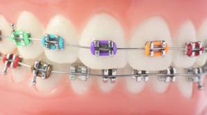apparecchio per i denti danni