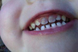 denti neri bambini dentista milano