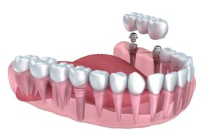 dentiera o implantologia