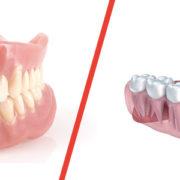dentiera o implantologia milano
