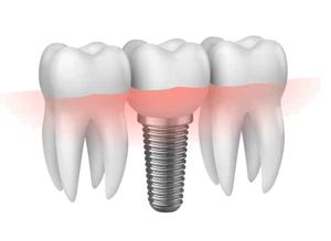implantologia a carico differito