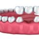 sostituire un solo dente
