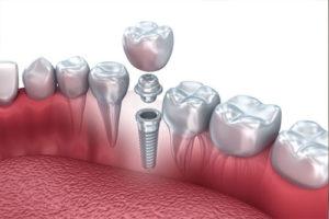 qualità delle protesi dentali