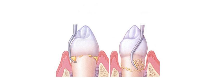 tasca parodontale