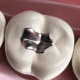 dente devitalizzato