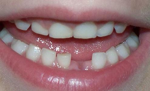 eruzione dei denti