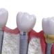 infezione all'impianto dentale