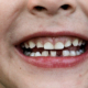 anchilosi del dente