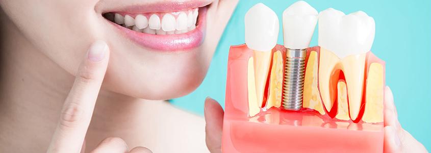 cura dell'impianto dentale