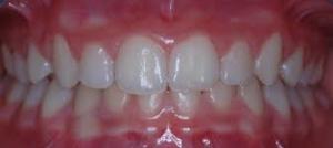 morso profondo ortodonzia milano