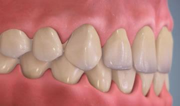 morso profondo dentista milano