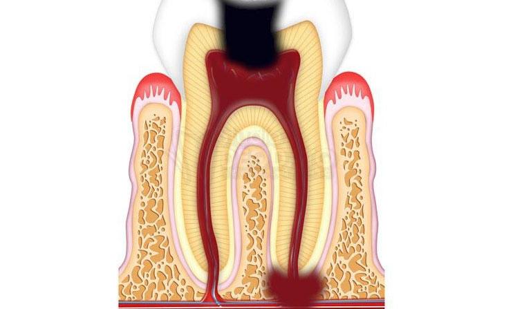 granuloma al dente