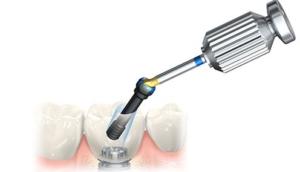 rimozione di un impianto dentale a milano