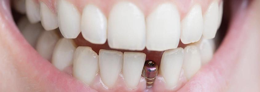 impianti dentali si fratturano