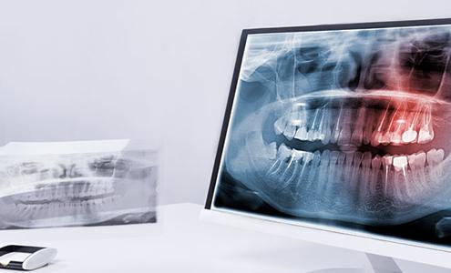 controindicazioni per l'implantologia