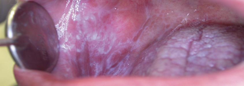 liche planus orale