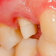 Predisposizione genetica alla parodontite