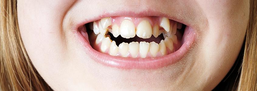 affollamento dentale cura milano